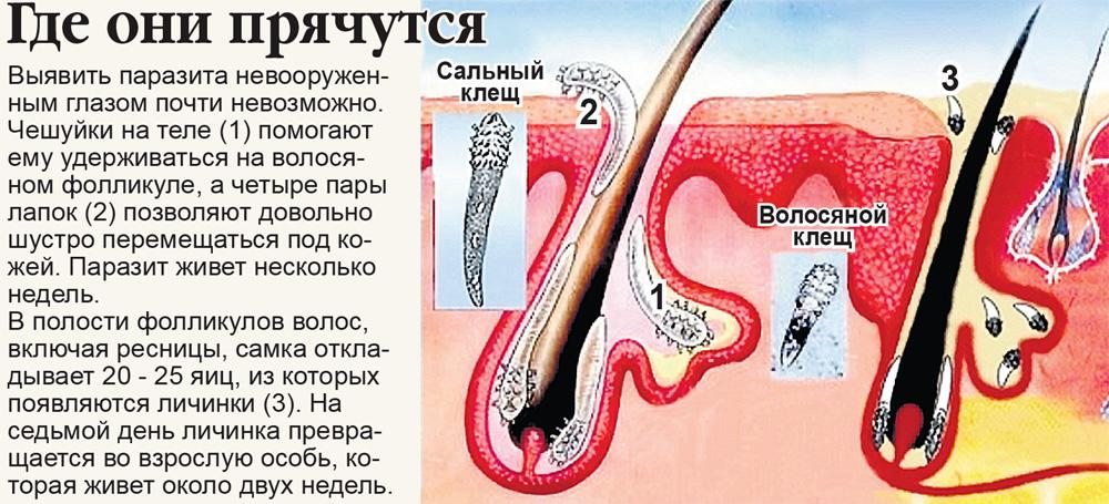 Лечение демодекоза народными средствами в домашних условиях