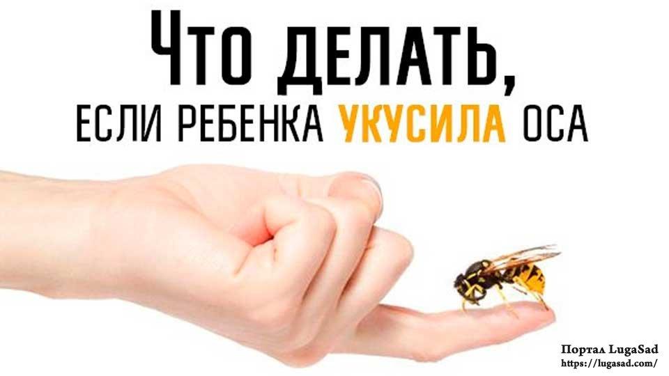 Если покусали осы