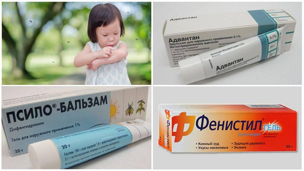Чем можно быстро снять зуд от укуса комара у ребенка?