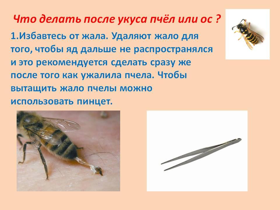Что делать при укусе осы — первая помощь пострадавшему