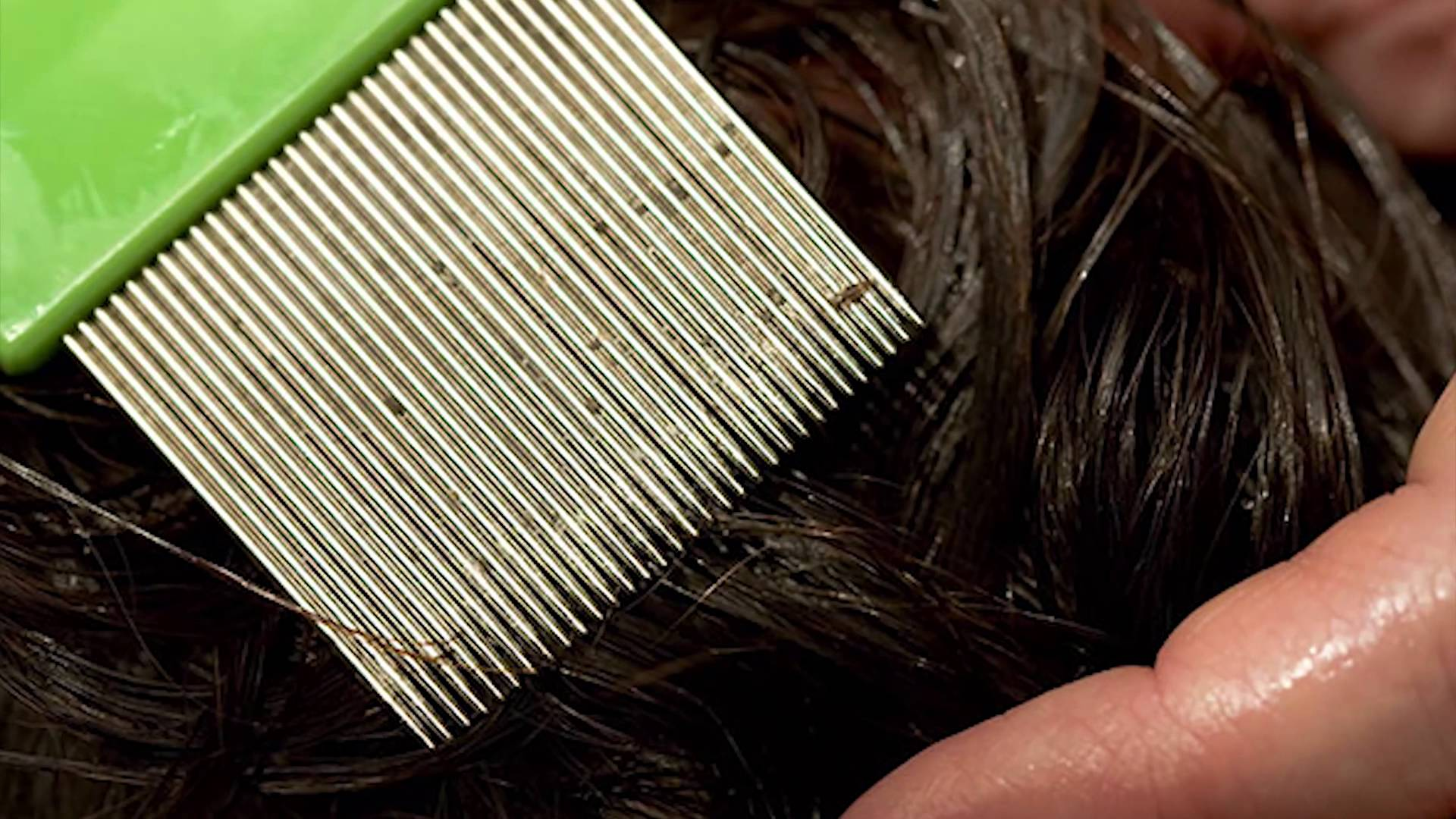 Живут ли вши на окрашенных волосах: убивает ли их краска?