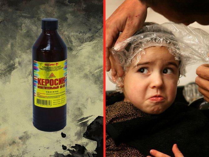 Как вывести вшей и гнид керосином: инструкция и меры безопасности