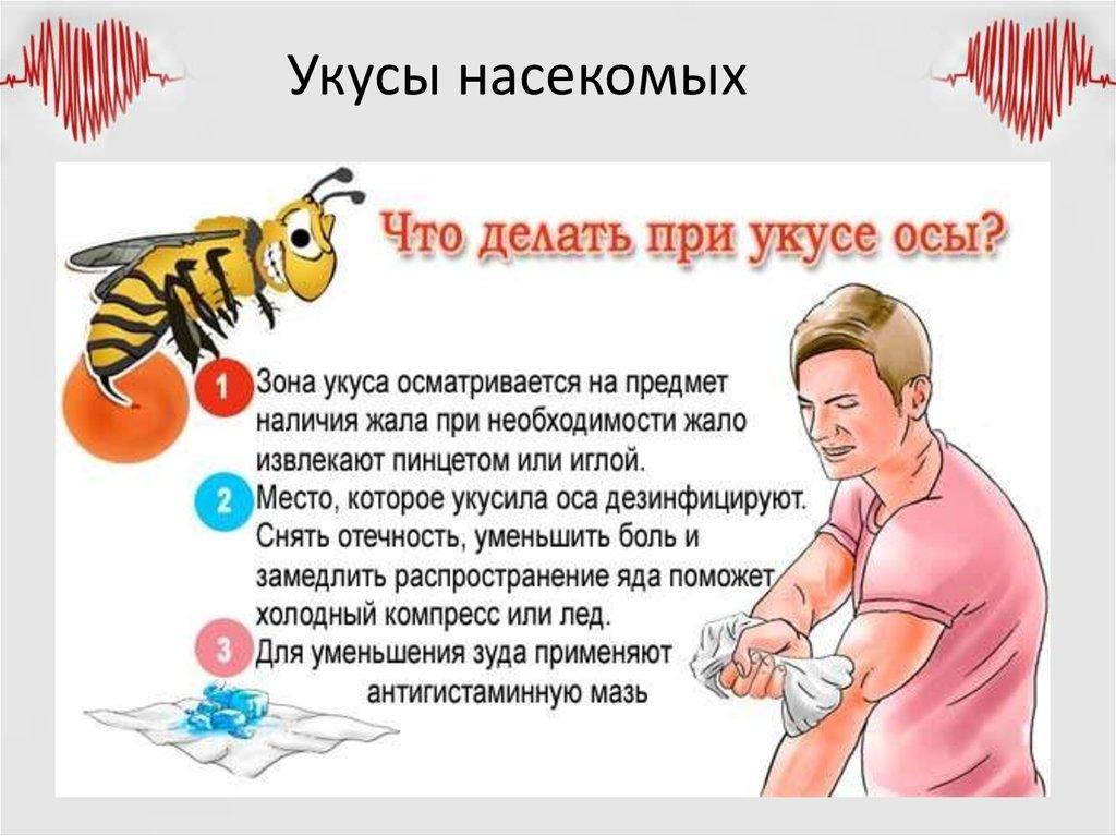 Что делать если укусила оса: первая помощь, что помогает снять отек