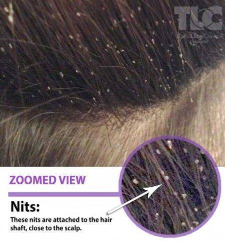 Как отличить перхоть от гнид на волосах - главные признаки и рекомендации