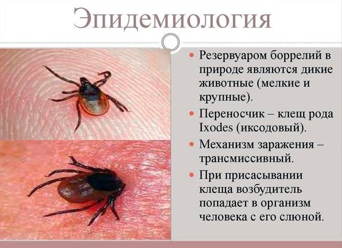 Боррелиоз - симптомы, лечение, последствия, фото боррелиоза