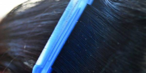 Если покрасить волосы вши умрут или нет?