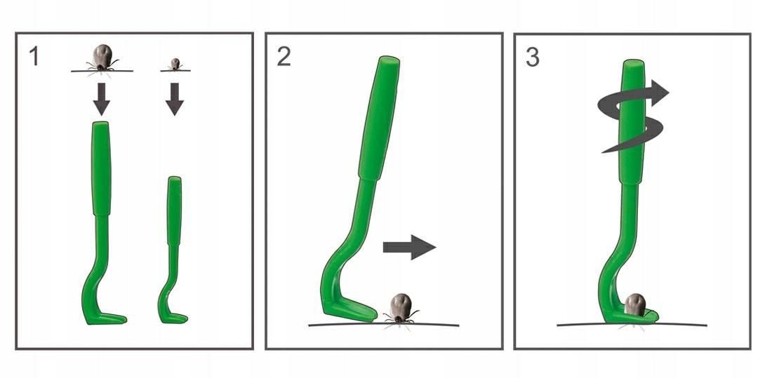 Пинцет для удаления клещей: специальные устройства