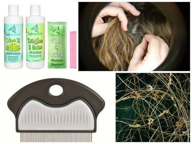 Как вывести вшей и гнид лаком для волос: преимущества и недостатки лака «прелесть»