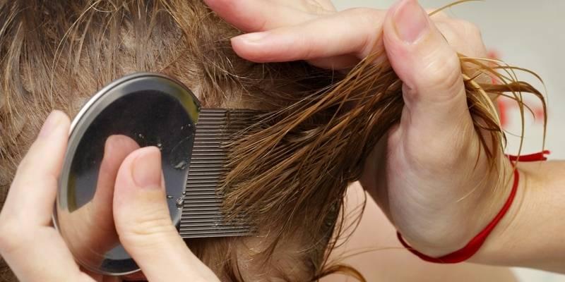 8 шагов как избавиться от вшей в домашних условиях быстро? какое средство от вшей и гнид недорогое, но эффективное