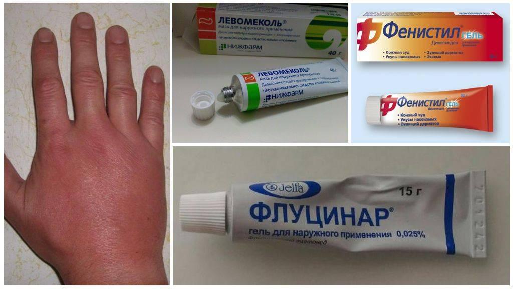 После укуса комара используйте специальные средства!