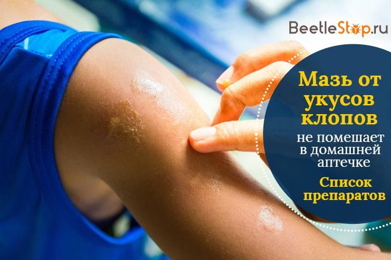 Мази и народные средства от укусов постельных клопов
