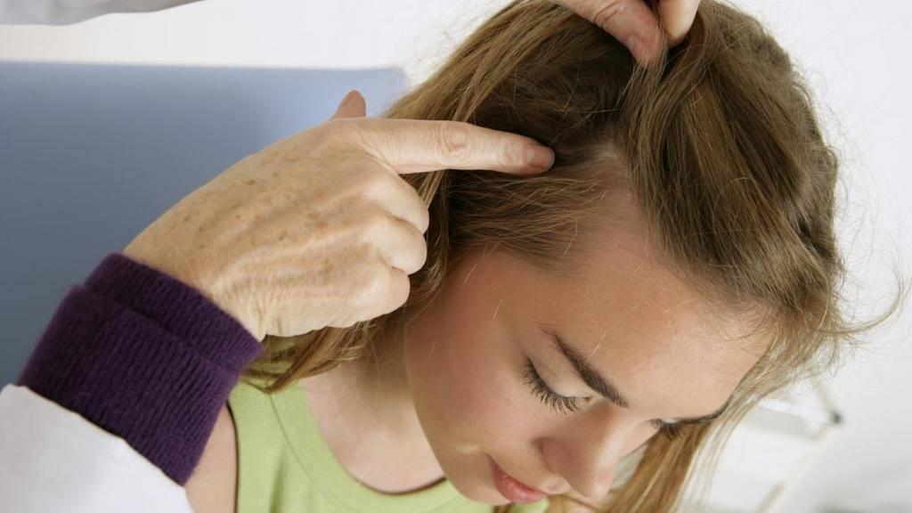 Почему чешется голова она чистая без вшей — про зуд