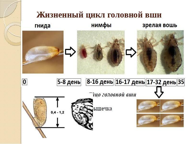 От гниды до взрослой особи: цикл развития головных, платяных и лобковых вшей
