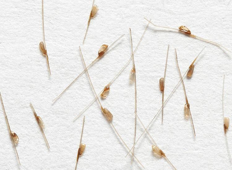 Гниды и вши в волосах: как они выглядят, инкубационный период. как вычесать гниды? | рутвет - найдёт ответ!