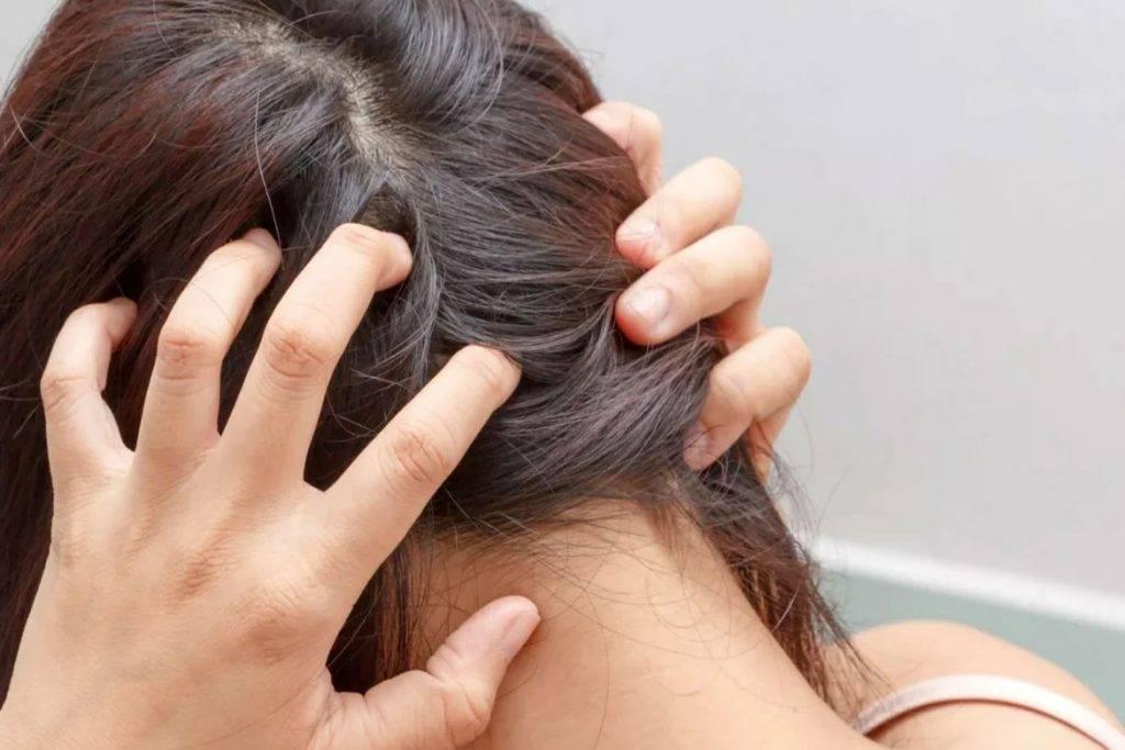 Чешется голова: 12 причин и что делать для лечения