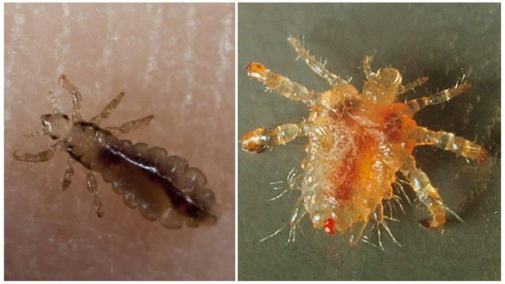 Вошь человеческая: виды паразитов, средства и способы лечения