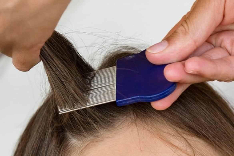 Как вывести вши у ребенка с длинными волосами: способы лечения и профилактика гнид у девочек и мальчиков