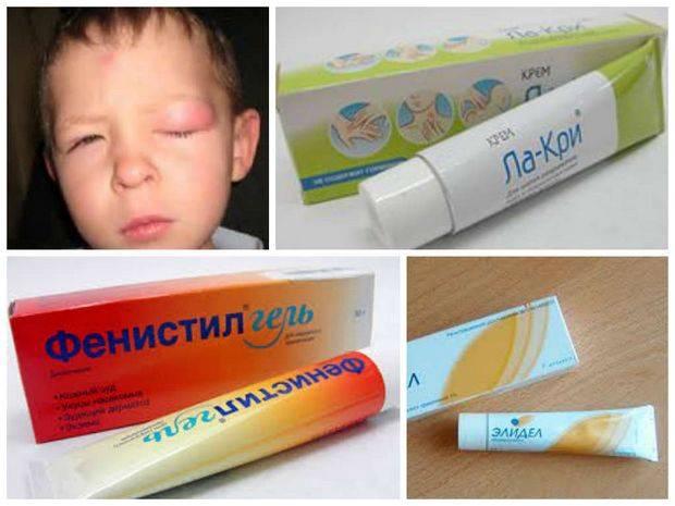 Укусы мошки и комаров у детей: как правильно снять красноту и зуд, что делать в случае аллергической реакции