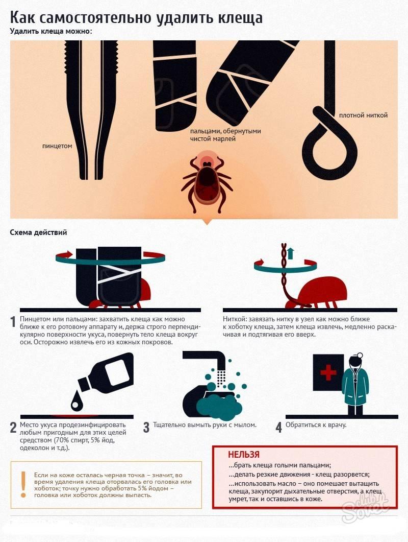 Как вытащить клеща при помощи шприца