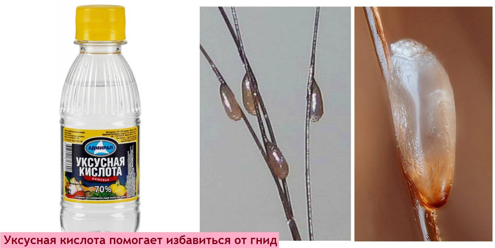 Способы применения дегтярного мыла от вшей и гнид, отзывы об эффективности | | prod make up