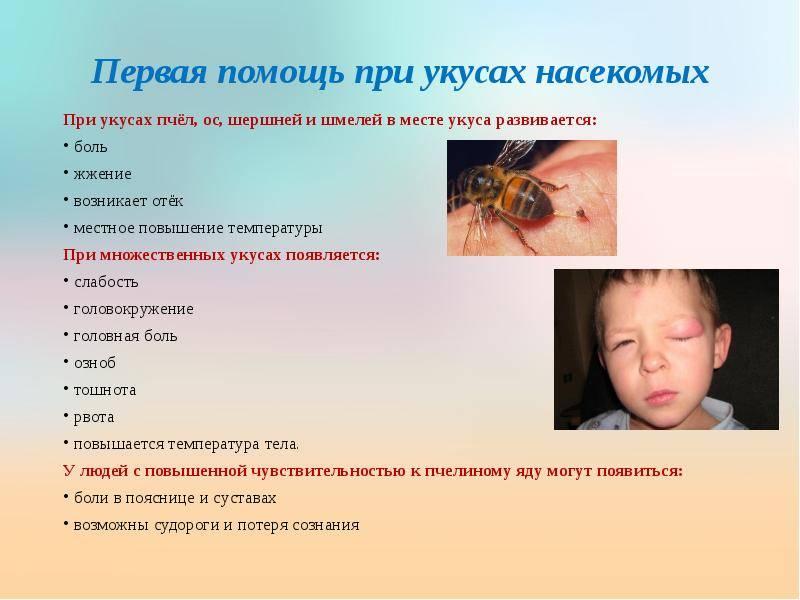 Укусы пчел — первая помощь и лечение