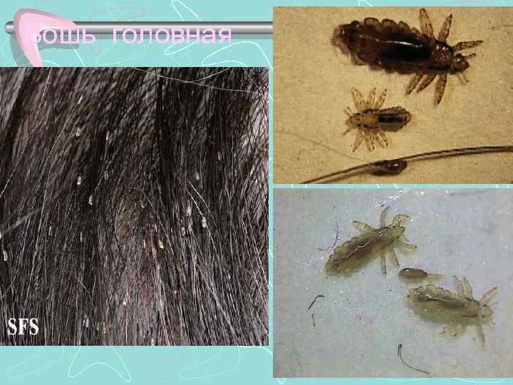 Как выглядят вши и гниды на волосах и как с ними бороться