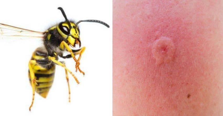 Укус пчелы, осы, что делать? первая помощь при укусе пчелы, осы, шершня.