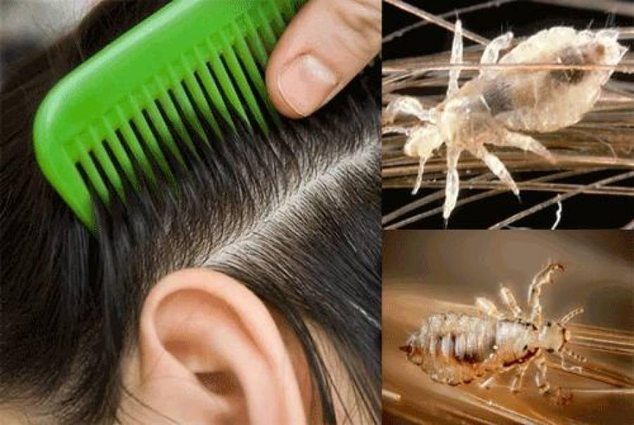 7 красок для волос – убийц вшей и гнид