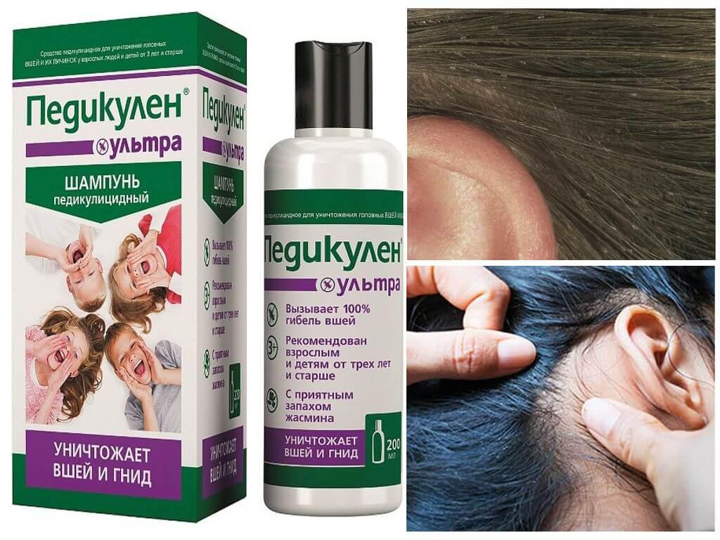 Самые эффективные шампуни от вшей и гнид: лечение за один раз