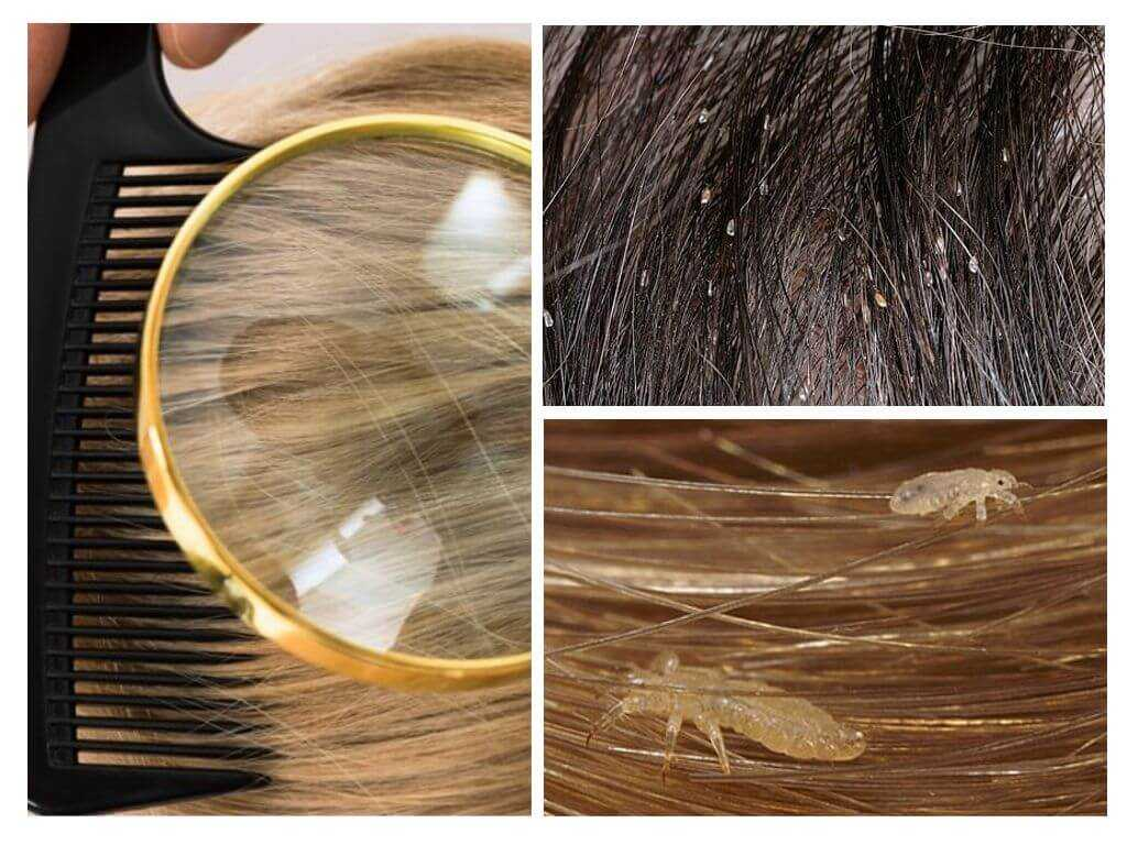 ❼ 7 красок для волос - убийц вшей и гнид. избавляемся от вшей в домашних условиях