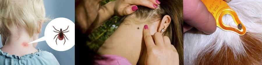 Ребенка укусил клещ: что делать?. наш ребенок.