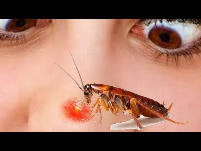 Укус таракана как выглядит