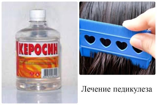 Как уничтожить вшей керосином