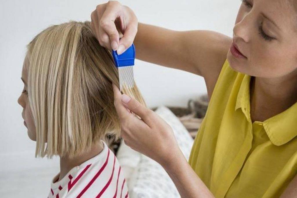 Что делать, как и чем вывести вши и гниды у ребенка: средства для лечения
