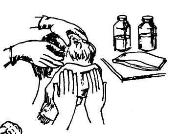 Как выполняется обработка волосистой части головы при педикулезе? полезная информация для медсестры и пациента