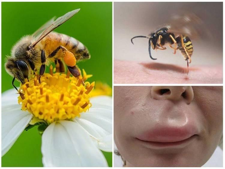 Укусы пчёл и ос при беременности: первая помощь, экстренные случаи, профилактика