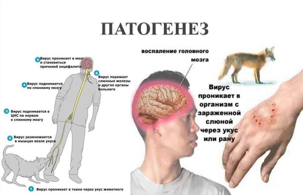 «бешенство»: почему эта болезнь такая страшная   русская семерка