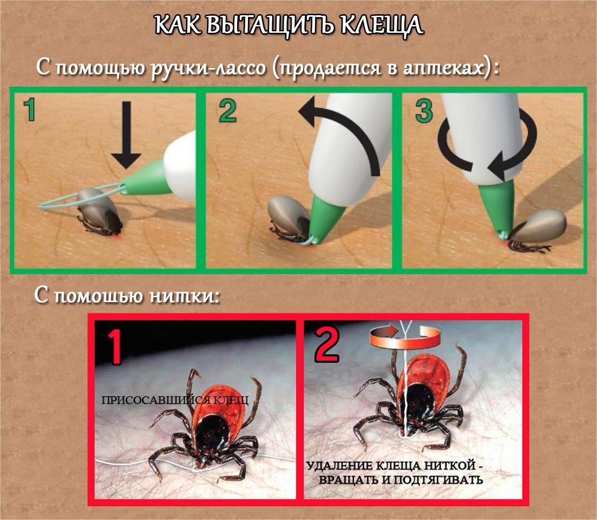 Первая помощь при укусе клеща: профилактика, меры, последовательность оказания, симптомы