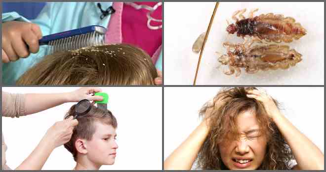 Убивает ли краска для волос вшей и гнид, советы эксперта