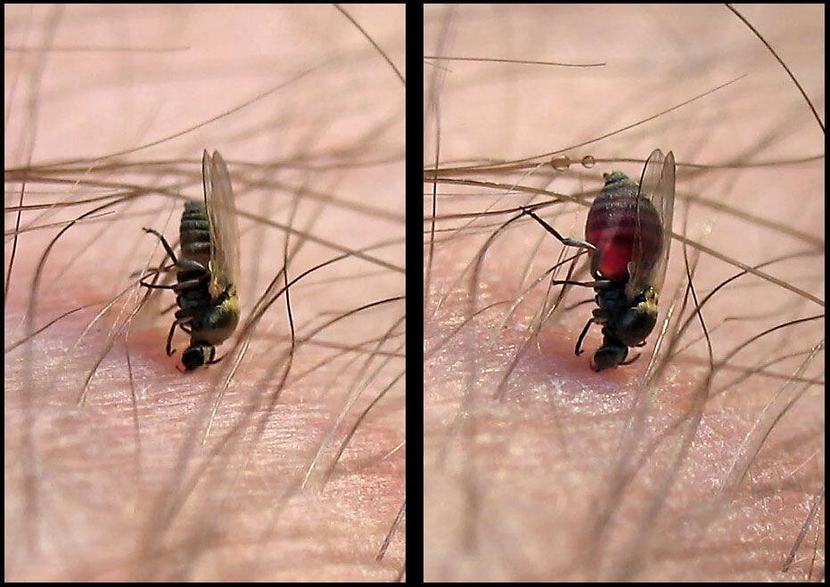 Укусы насекомых (фото), кто нас кусает на улице