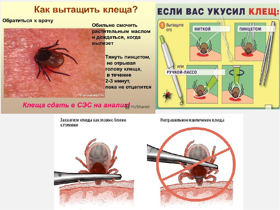 Клещ на теле: как извлечь насекомого