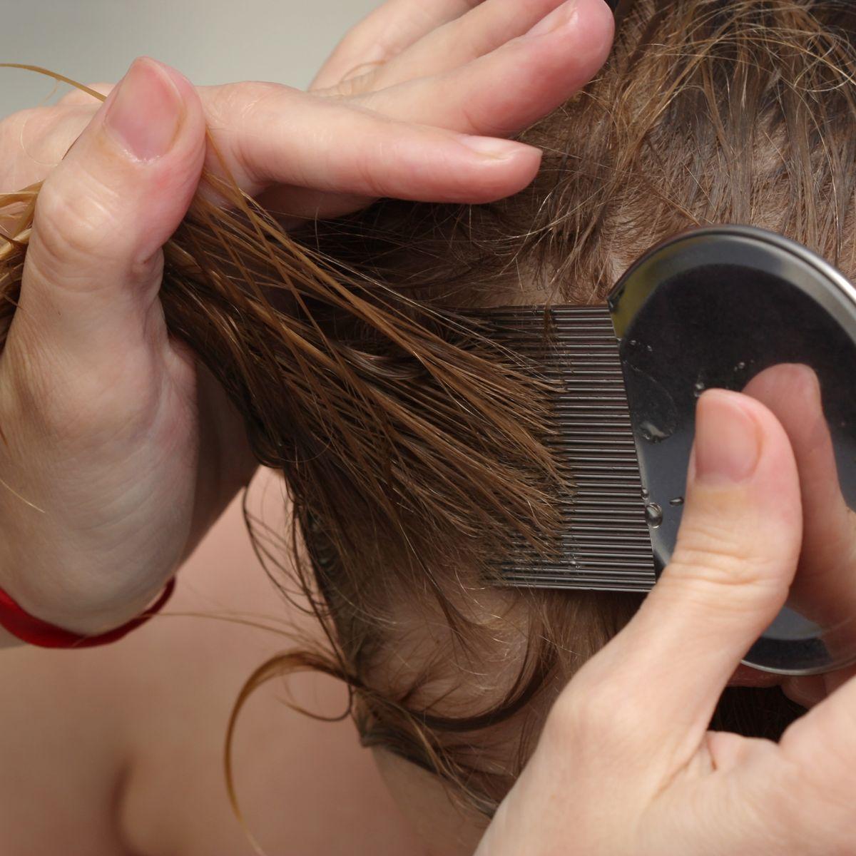 Можно ли убить вшей краской для волос: подробная инструкция