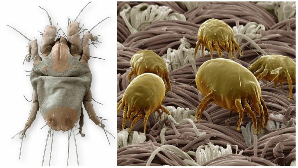 ❶ перьевой клещ в подушках: симптомы у человека, насколько опасен
