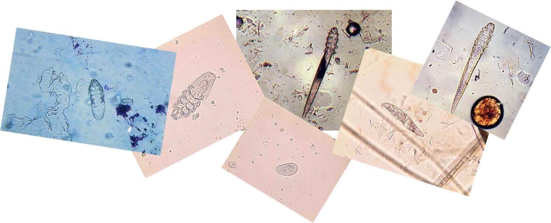Анализ на демодекоз (кожного клеща) — где можно сделать соскоб?