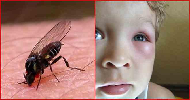 Если насекомое попало в ухо