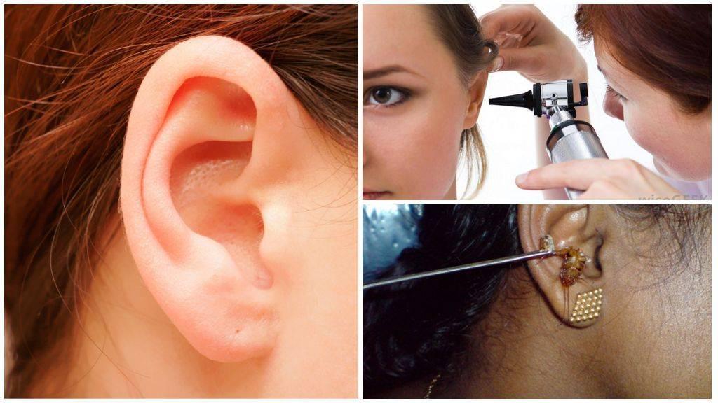 Что делать если в ухо залез таракан и как его вытащить в домашних условиях?