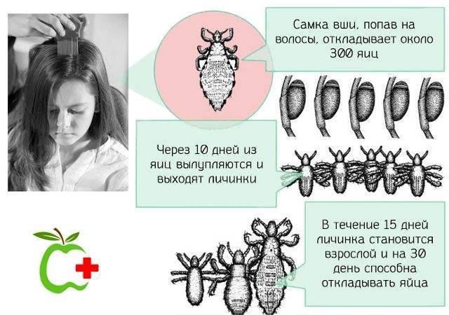 Как размножаются вши на голове у человека: жизненный цикл
