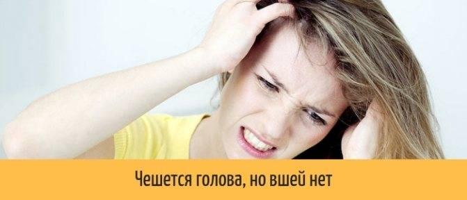 Почему чешется голова: причины, что сделать и как лечить народными и аптечными средствами, видео