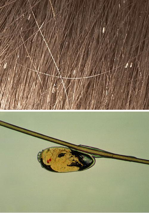 Как выглядят живые гниды, как их обнаружить, фото, видео