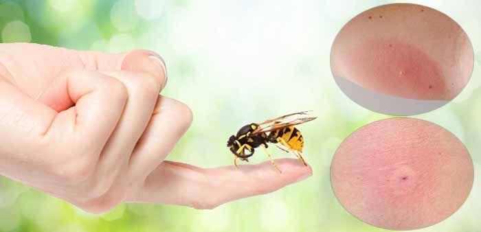 Первая помощь после укуса осы,пчелы. народные методы лечения осиных укусов.
